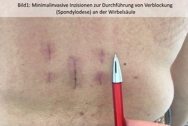 Dr.med. - Farman Hedayat - Ortho-Klinik Dortmund - Zentrum für Wirbelsäulenchirurgie und Schmerztherapie
