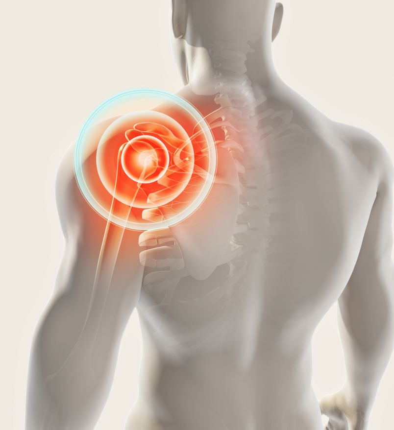 Frozen Shoulder   Schultersteife durch Gelenkentzündung