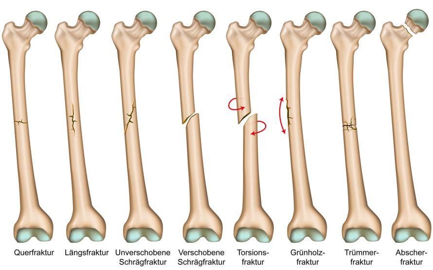 Knochenbruch | Arten und Behandlung einer Fraktur