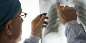 Thoraxchirurgie (Operationen am Brustkorb)