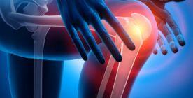Das Kniegelenk - Anatomie und Erkrankungen des Knies